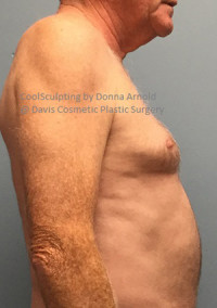 Male CoolSculpting