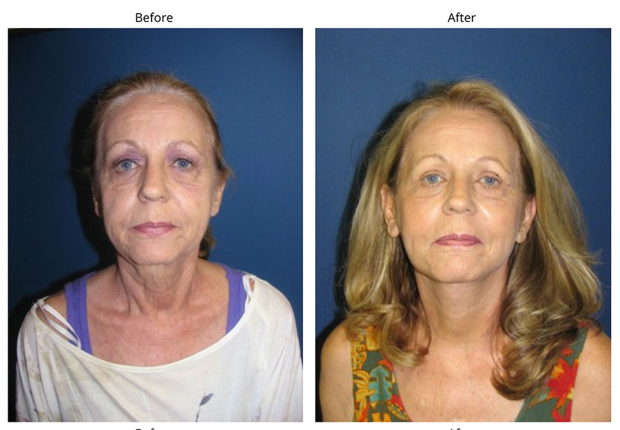 Facial Before After
