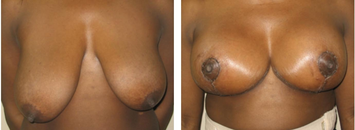 Breast Lift, Breast Lift, Dr. Steven Davis, Dr. Steven Davis