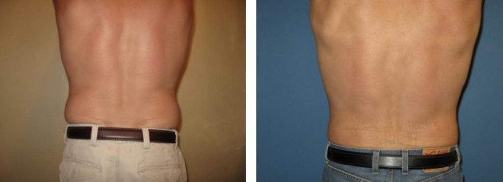 , Male Procedures Before & After, Dr. Steven Davis, Dr. Steven Davis