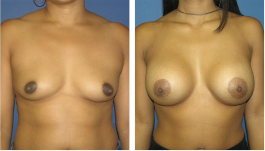 , Breast Procedures Before & After, Dr. Steven Davis