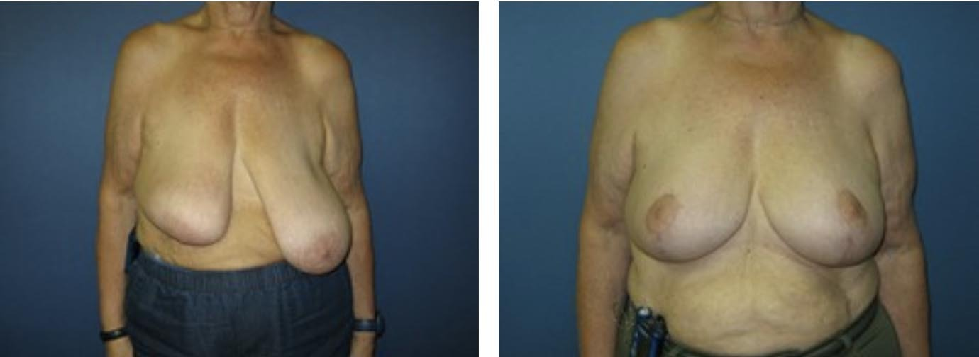 , Breast Procedures Before & After, Dr. Steven Davis, Dr. Steven Davis