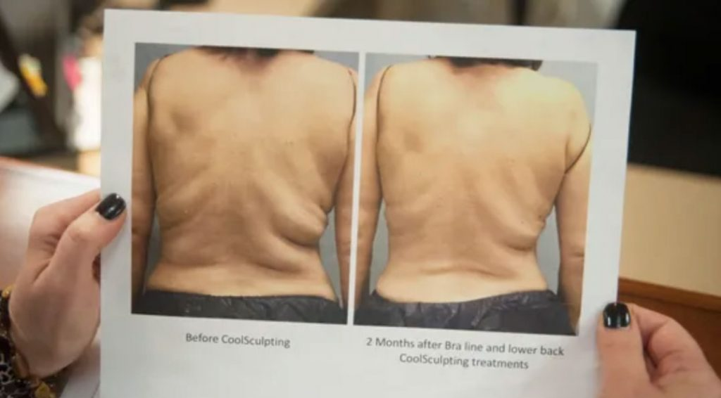 Freeze Your Fat, Freeze Your Fat? CoolSculpting is Gaining Popularity, Dr. Steven Davis