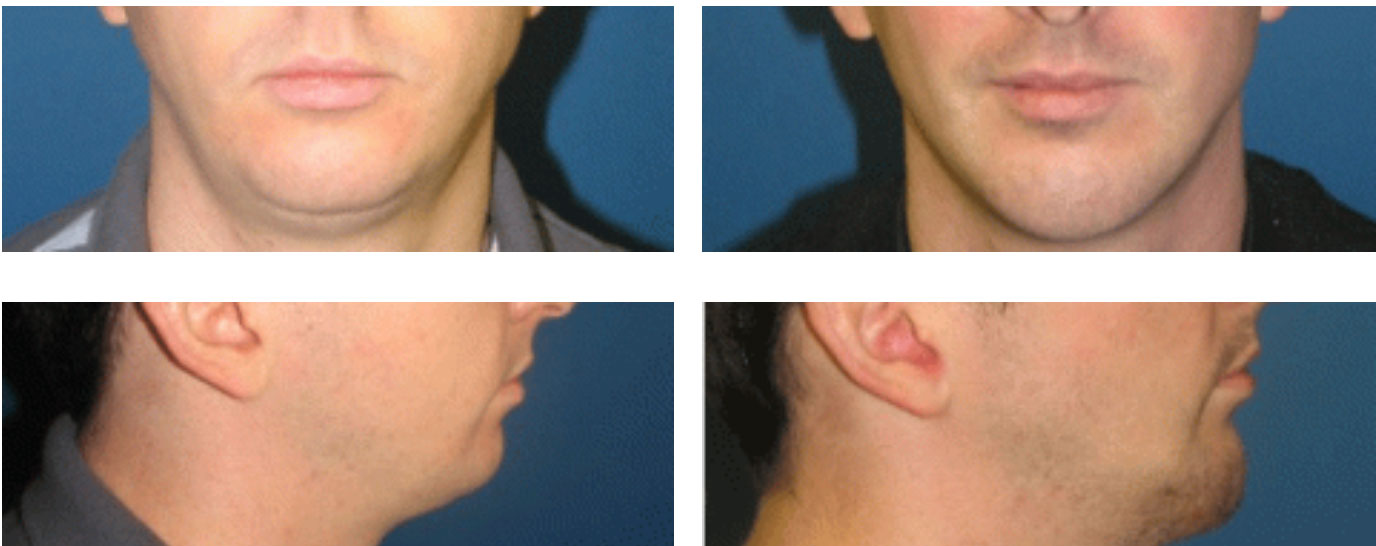 Face Implants, Face Implants, Dr. Steven Davis