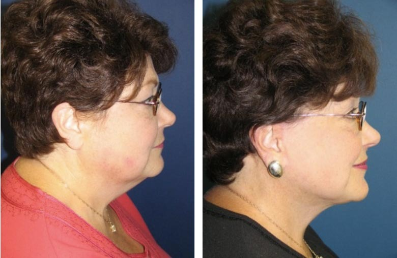 , Face Procedures Before & After, Dr. Steven Davis