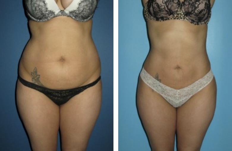 , Body Procedures Before & After, Dr. Steven Davis
