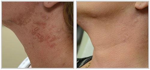 , Skin Procedures Before & After, Dr. Steven Davis