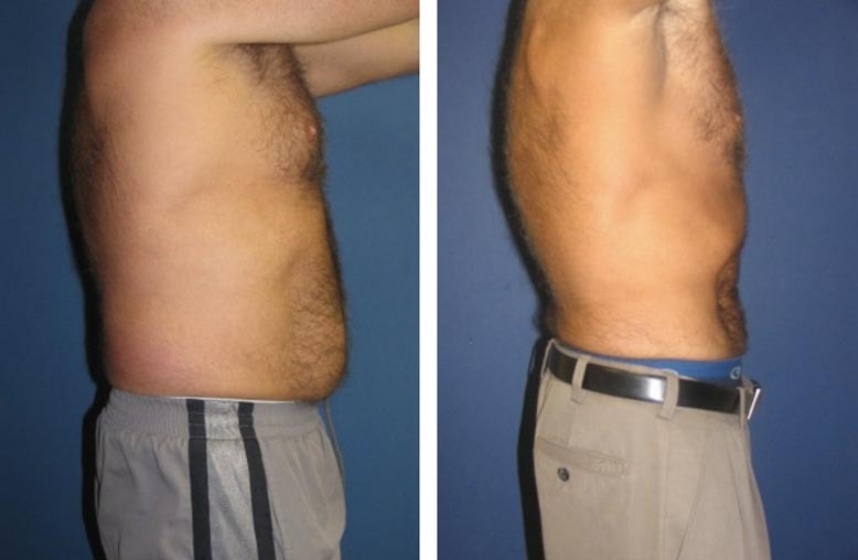 , Liposuction, Dr. Steven Davis, Dr. Steven Davis