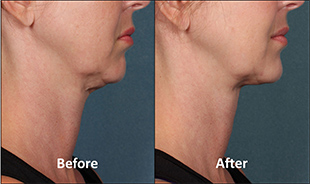 Kybella-Before-After-Thumb-2