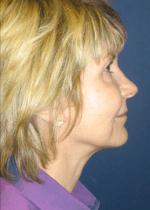Face Procedures, Face Procedures, Dr. Steven Davis