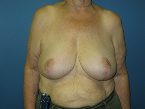 Breast Reduction, Breast Reduction, Dr. Steven Davis
