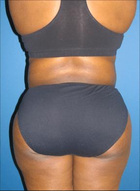 Liposuction, Liposuction, Dr. Steven Davis, Dr. Steven Davis