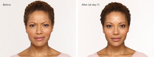 Botox, Botox, Dr. Steven Davis