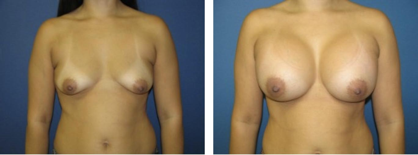 , Breast Procedures Before & After, Dr. Steven Davis, Dr. Steven Davis
