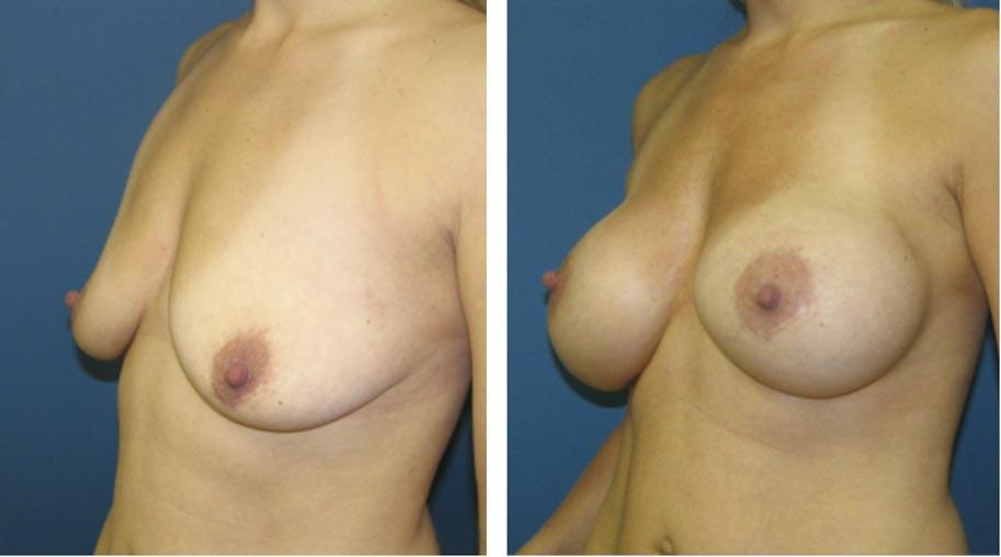 , Breast Procedures Before & After, Dr. Steven Davis