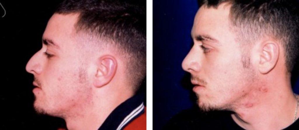, Male Procedures Before & After, Dr. Steven Davis, Dr. Steven Davis