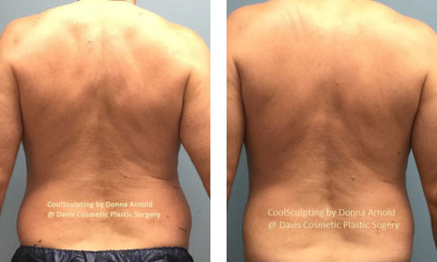 , Body Procedures Before & After, Dr. Steven Davis, Dr. Steven Davis