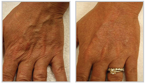 , Skin Procedures Before & After, Dr. Steven Davis