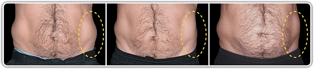 CoolSculpting, CoolSculpting: The Treatment that'll Improve Your Midsection Before the Summer's Over, Dr. Steven Davis, Dr. Steven Davis