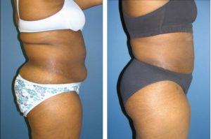 , Body Procedures Before & After, Dr. Steven Davis