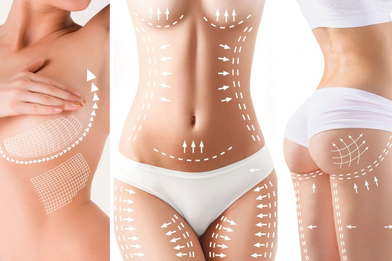 Body Contouring, Body Contouring. What Is It and What Body Contouring Procedures Are Available, Dr. Steven Davis